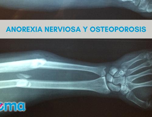 Anorexia Nerviosa y Osteoporosis